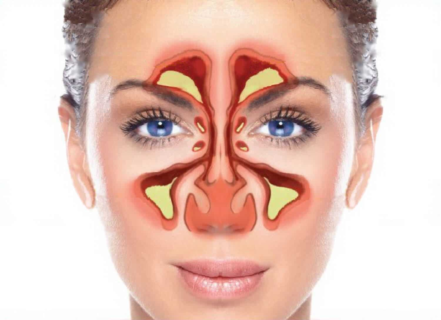 What Are the Sinuses? Pictures of Nasal Cavities |Sutra Neti Sinus Cavity Diagram