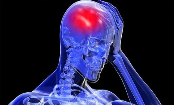 importancia del accidente cerebrovascular leve