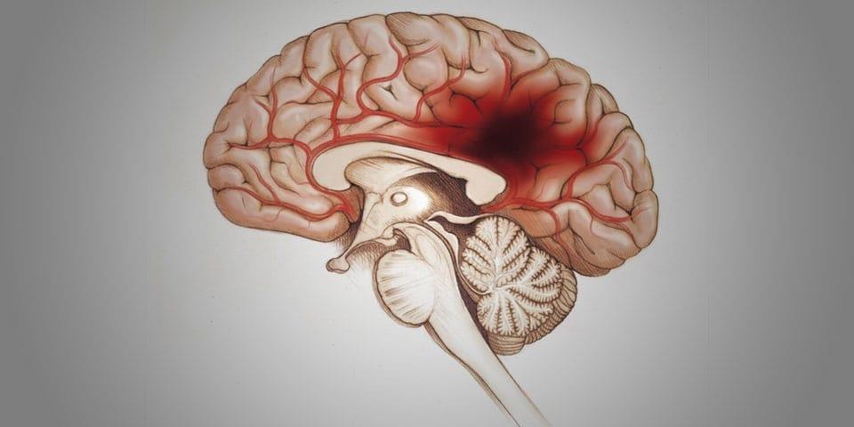 como es el accidente cerebrovascular