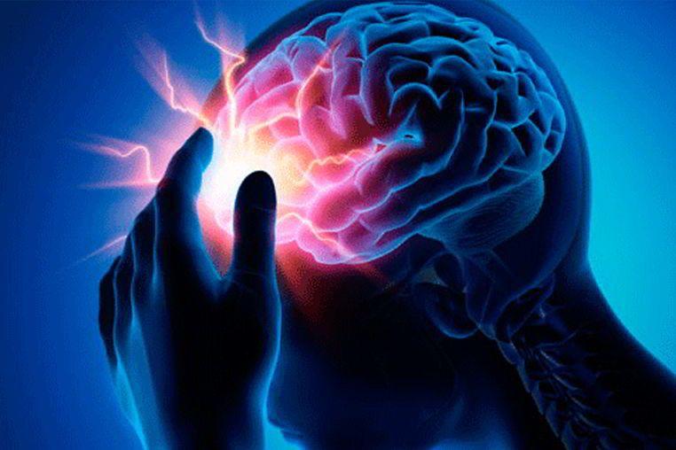 como es la clasificacion del accidente cerebrovascular