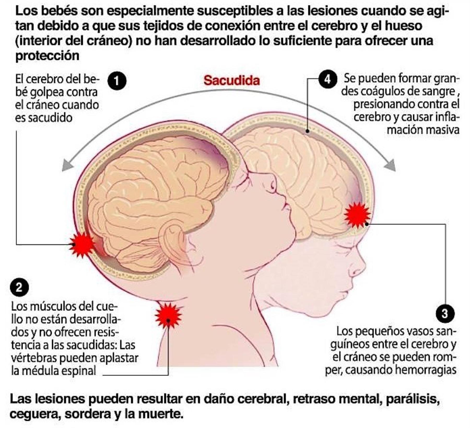 Niños con contusión cerebral