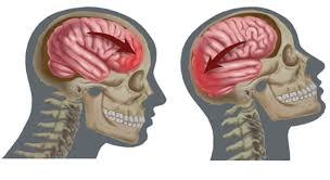 Contusión cerebral