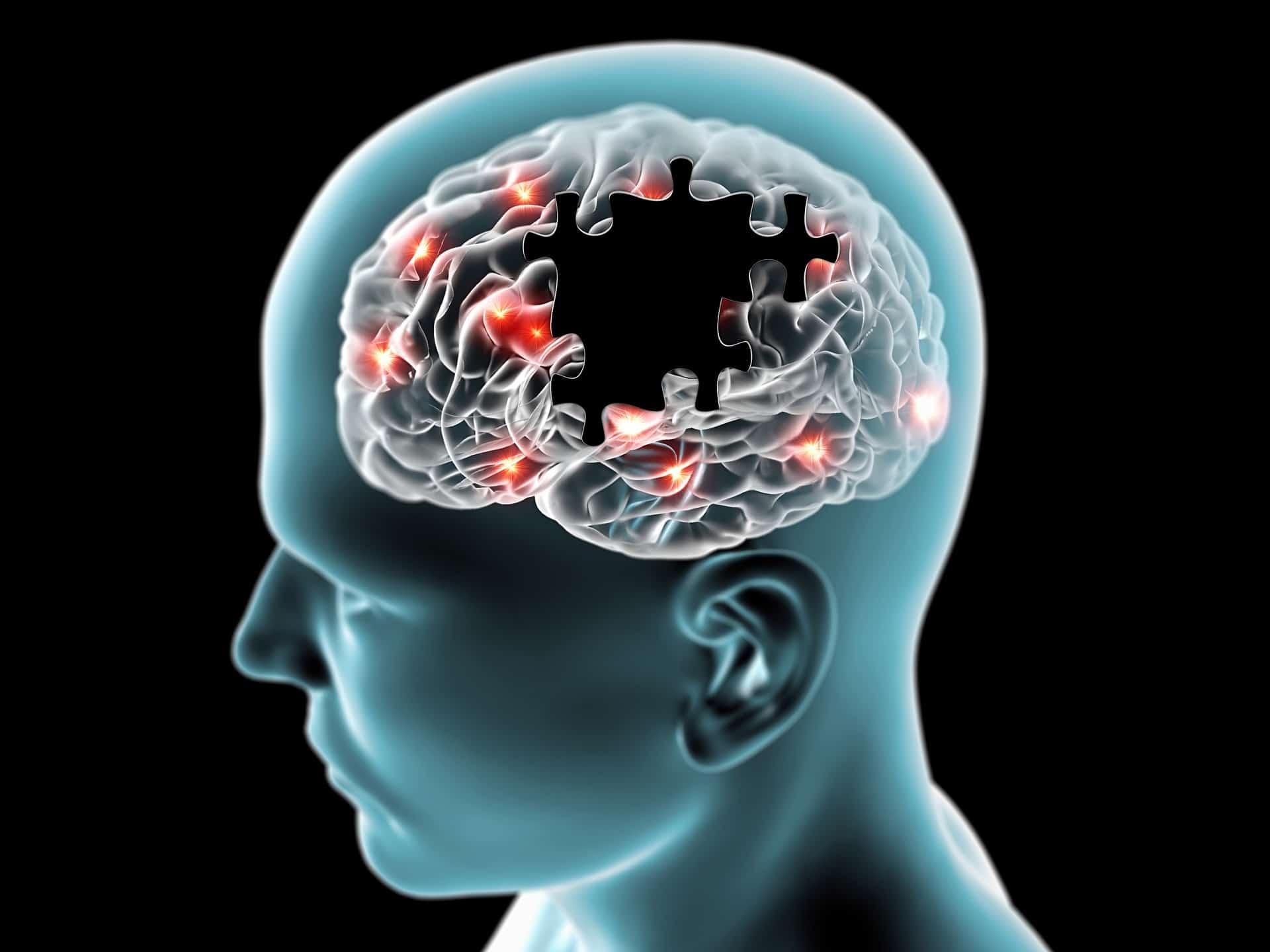 Contusion cerebral consecuencias parkinson