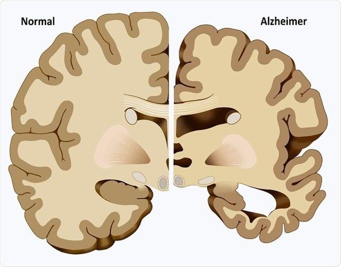 demencia 22