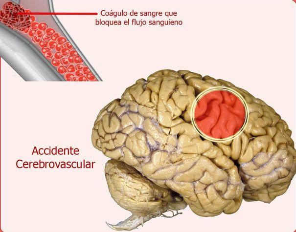 demencia 30