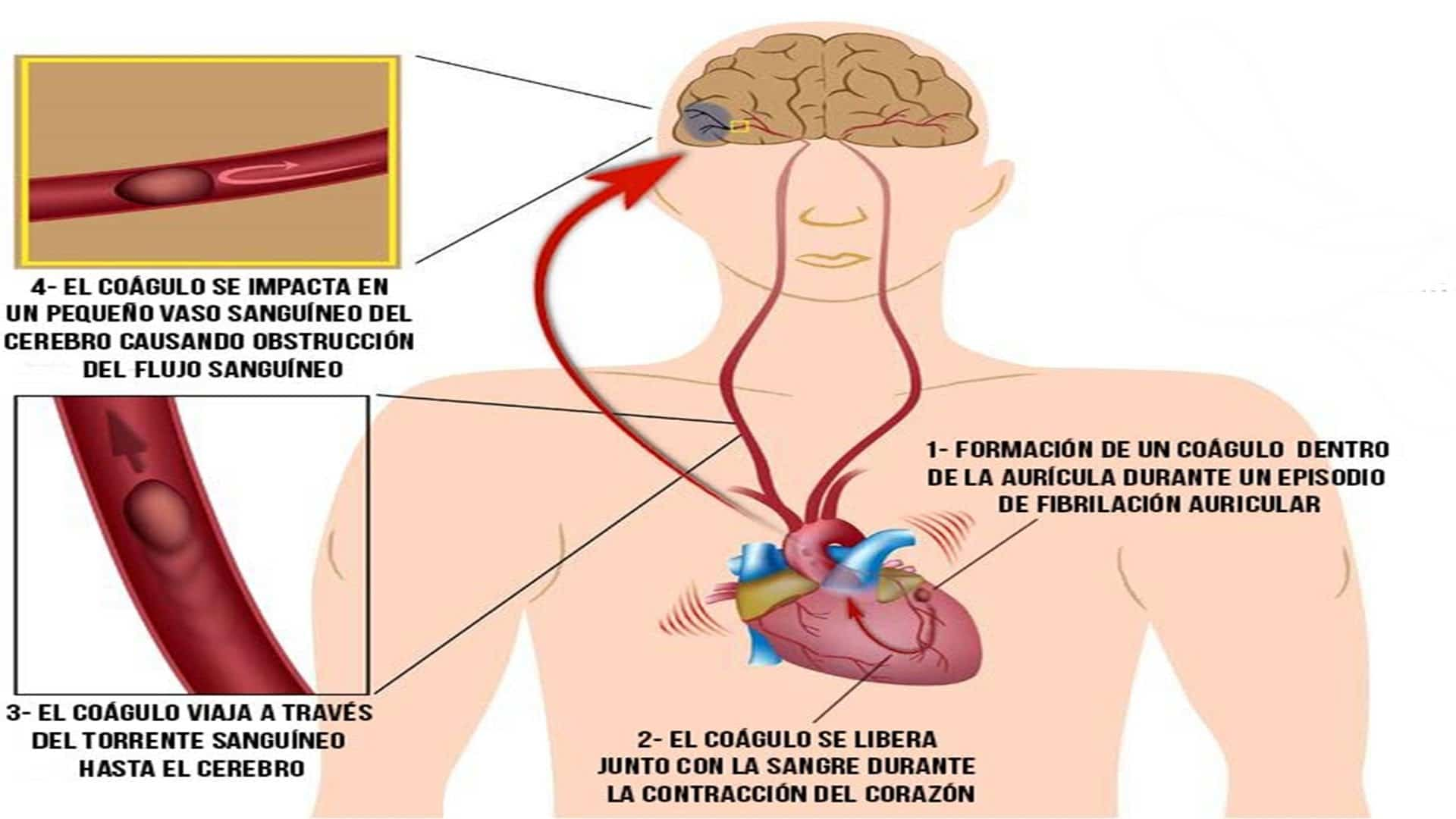 Tratamiento de embolia de aire cerebral