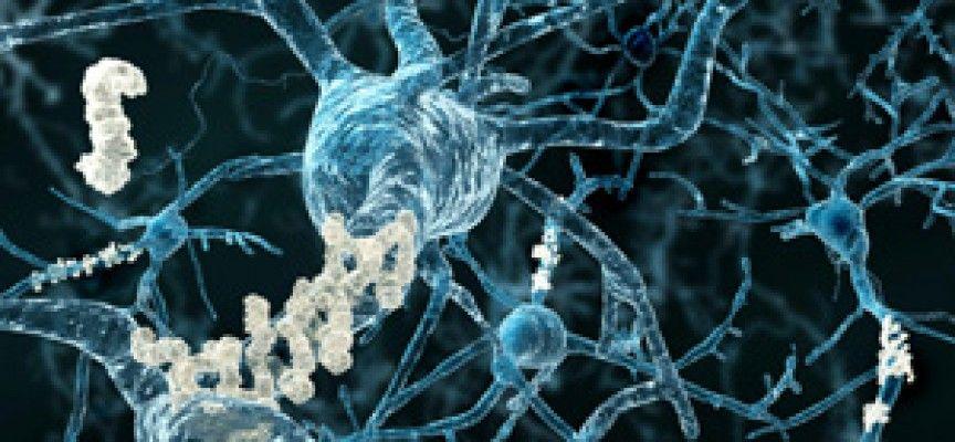 causas de la enfermedad cerebrovscular
