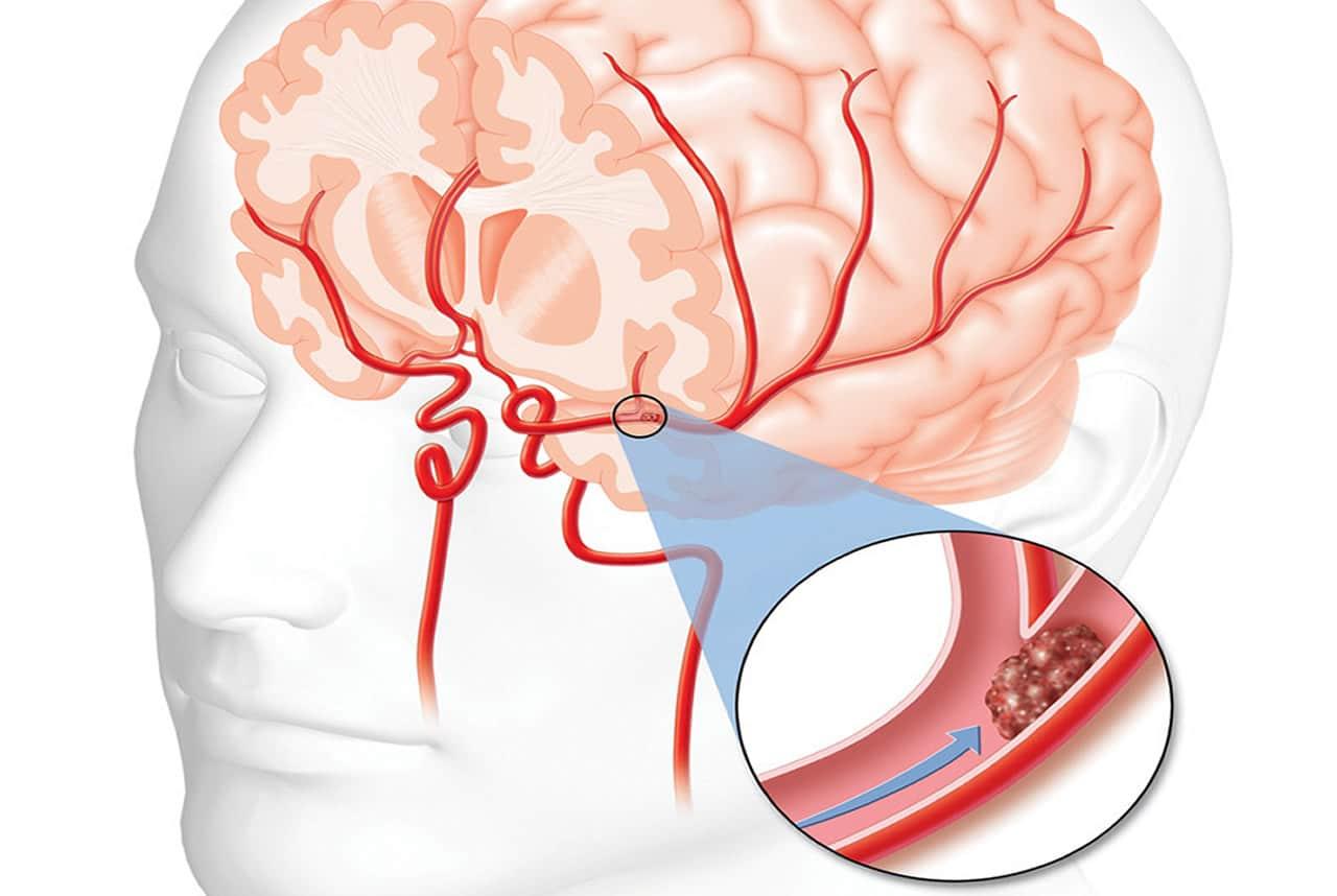 enfermedad cerebrovascular sus causas, síntomas y mucho más