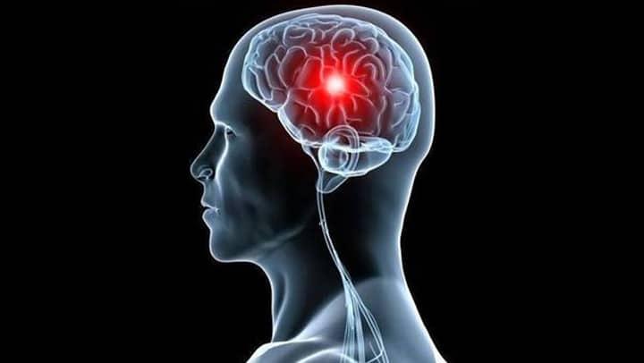 la recuperacion de un infarto cerebral