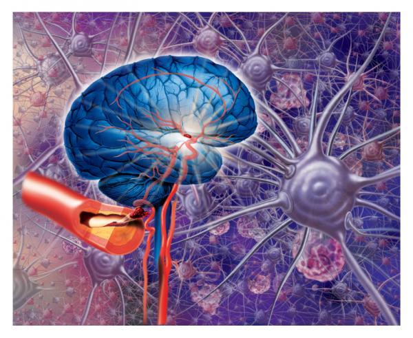 la recupercion de un infarto cerebral