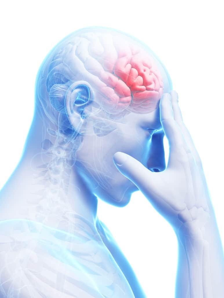sintomas de un tumor cerebral