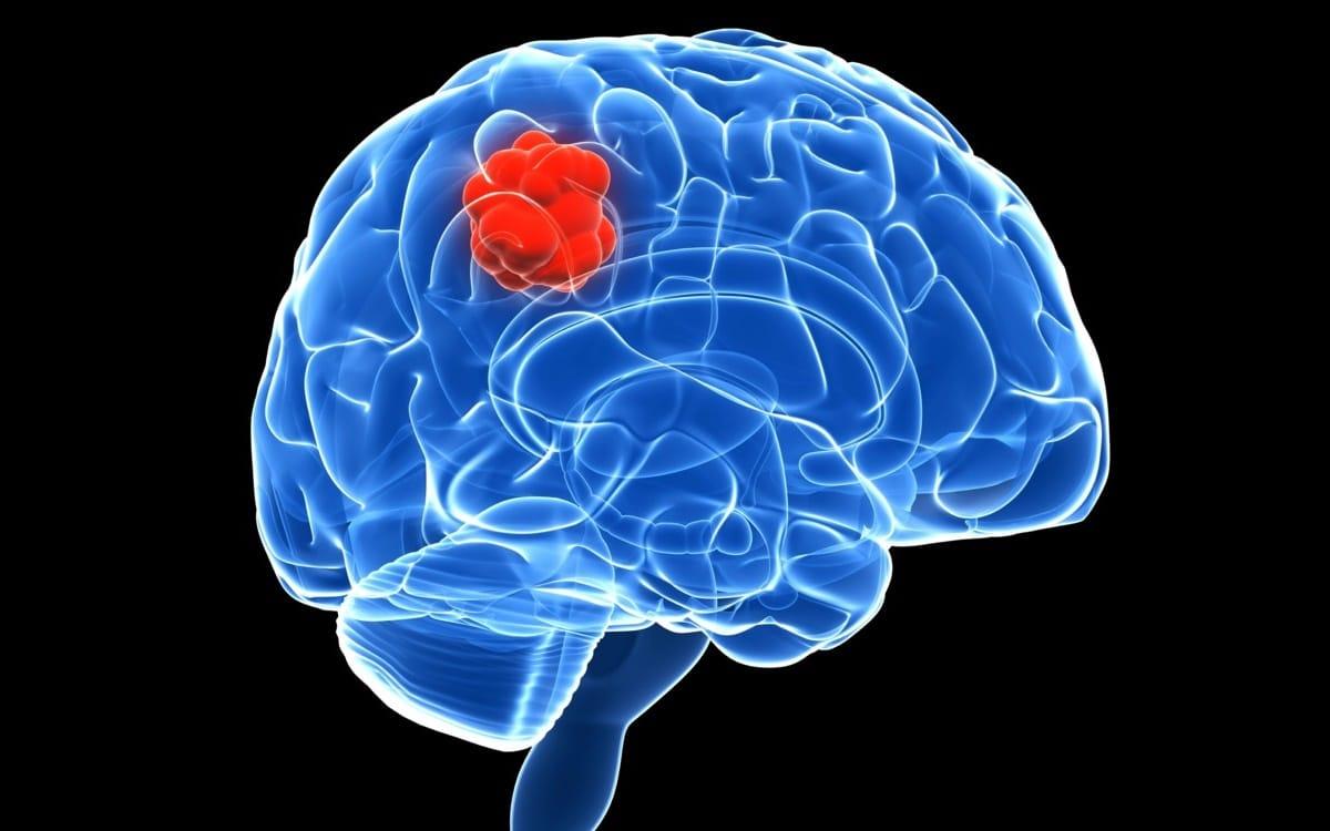 tumor cerebral y sus sintomas