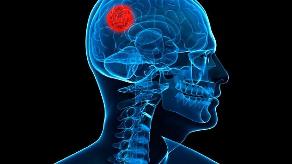 diferentes tipos de enfermedades cerebrales