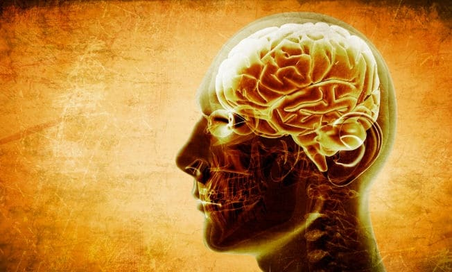 distintos tipos de infarto cerebral
