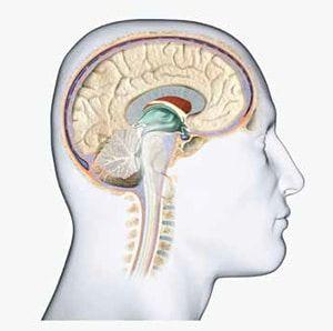 tumores cerebrales