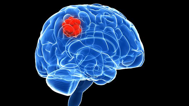 tumores en el cerebro