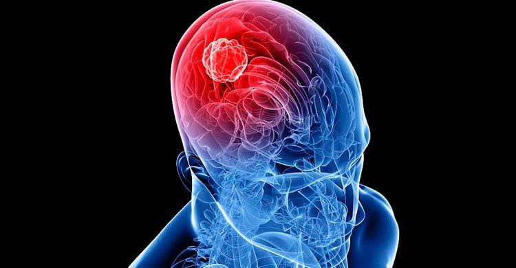 Tumor cerebral maligno o cáncer de cerebro