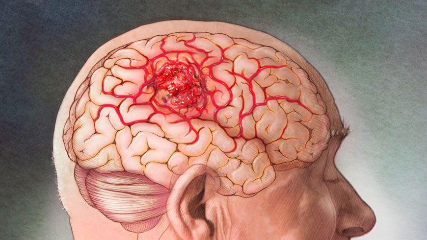 tumor en el cerebro en niños