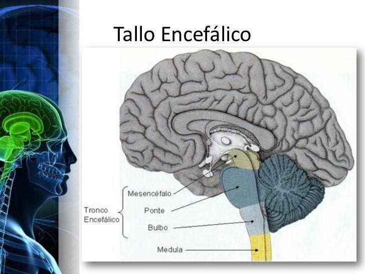 sintomas de tumor cerebral en bebes