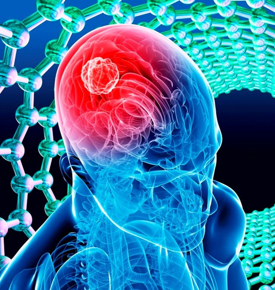 Causas de un tumor en el cerebro