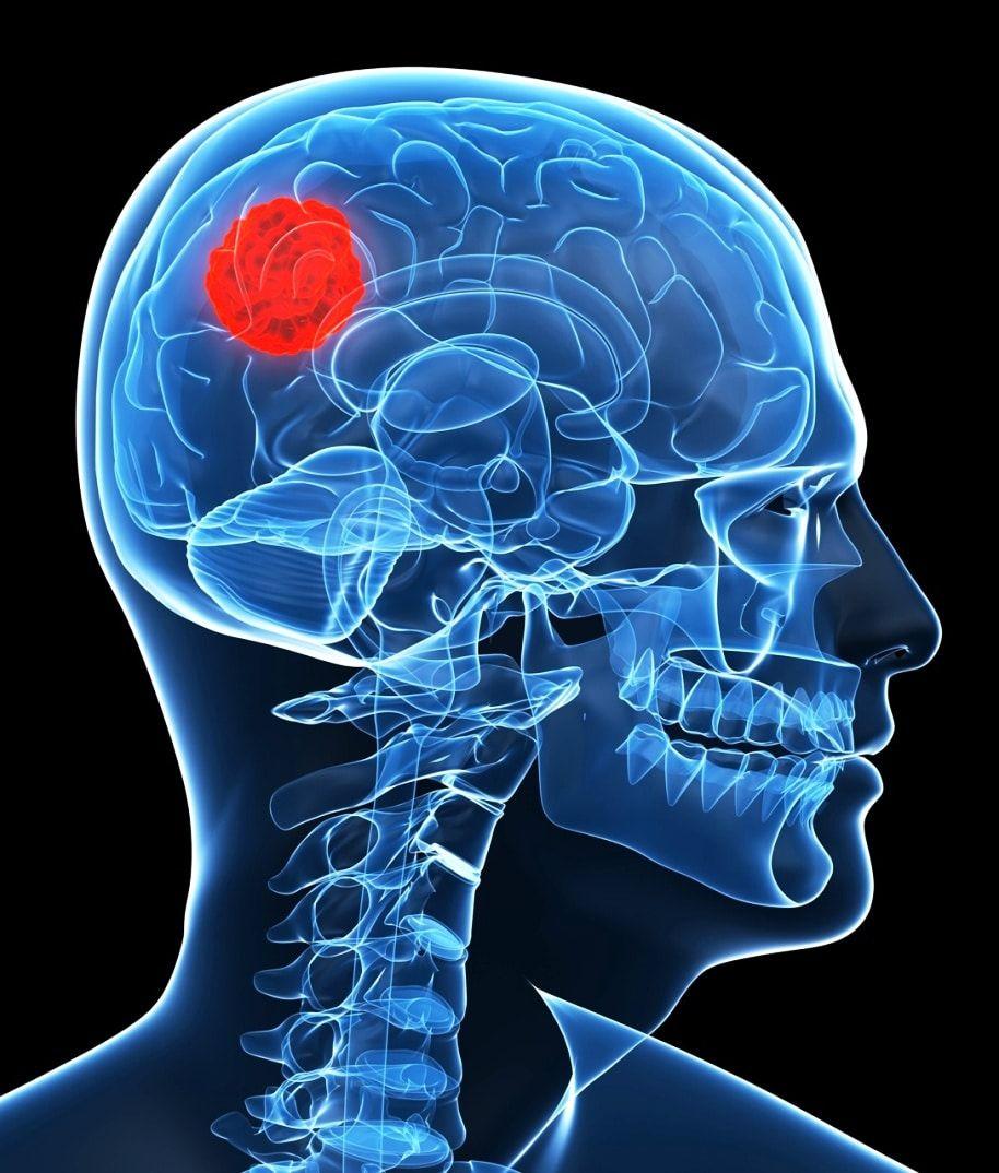 causas-de-un-tumor-en-el-cerebro-03