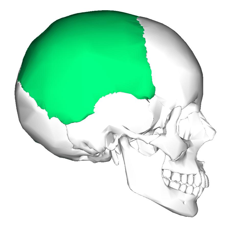 hidrocefalia8
