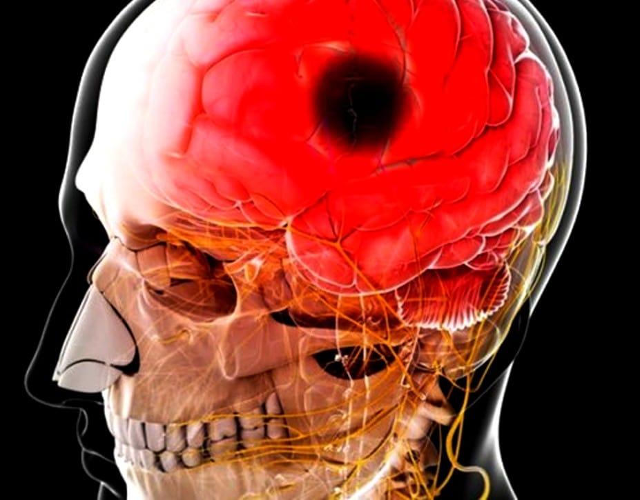 inflamacion-del-cerebro-17