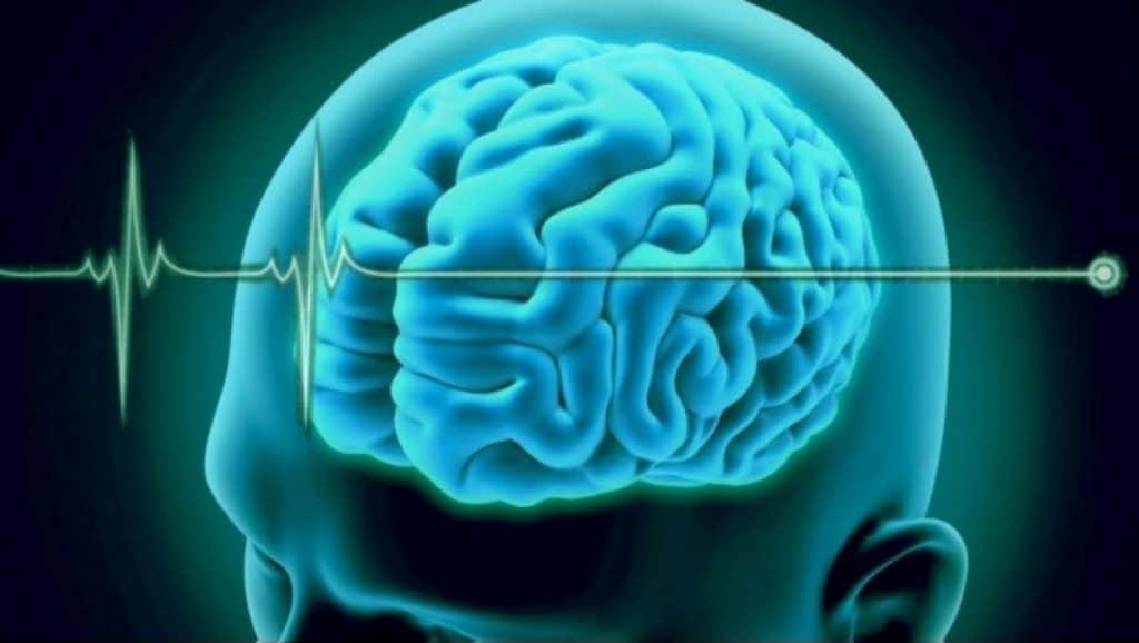 criterios de muerte cerebral
