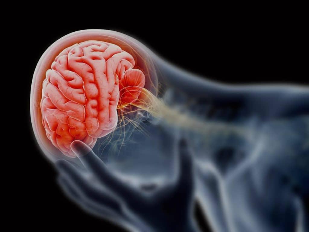 Edema cerebral toxico en Muerte cerebral