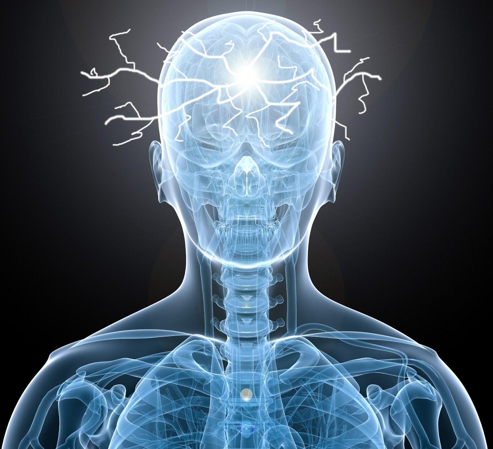 hidrocefalia12