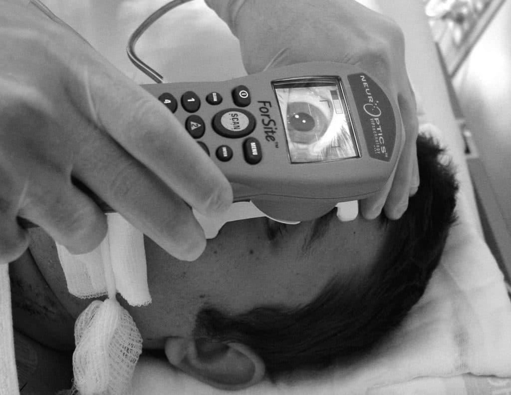 pupilas fijas y reactivas en Muerte cerebral