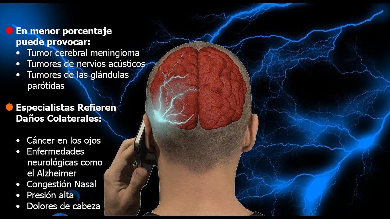 el telefono y el tumor cerebral