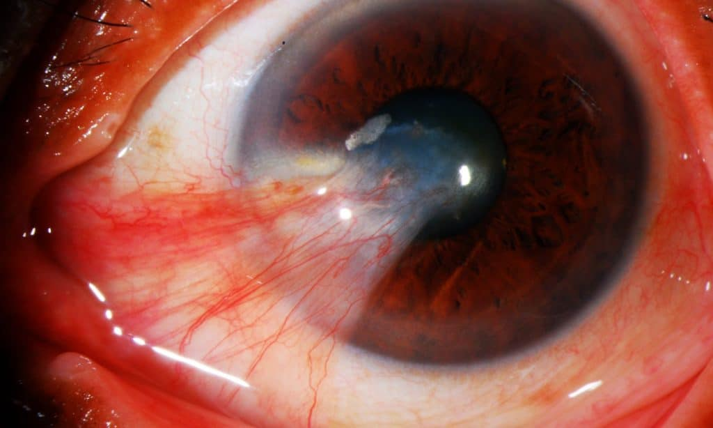Enfermedades oculares o de los ojos