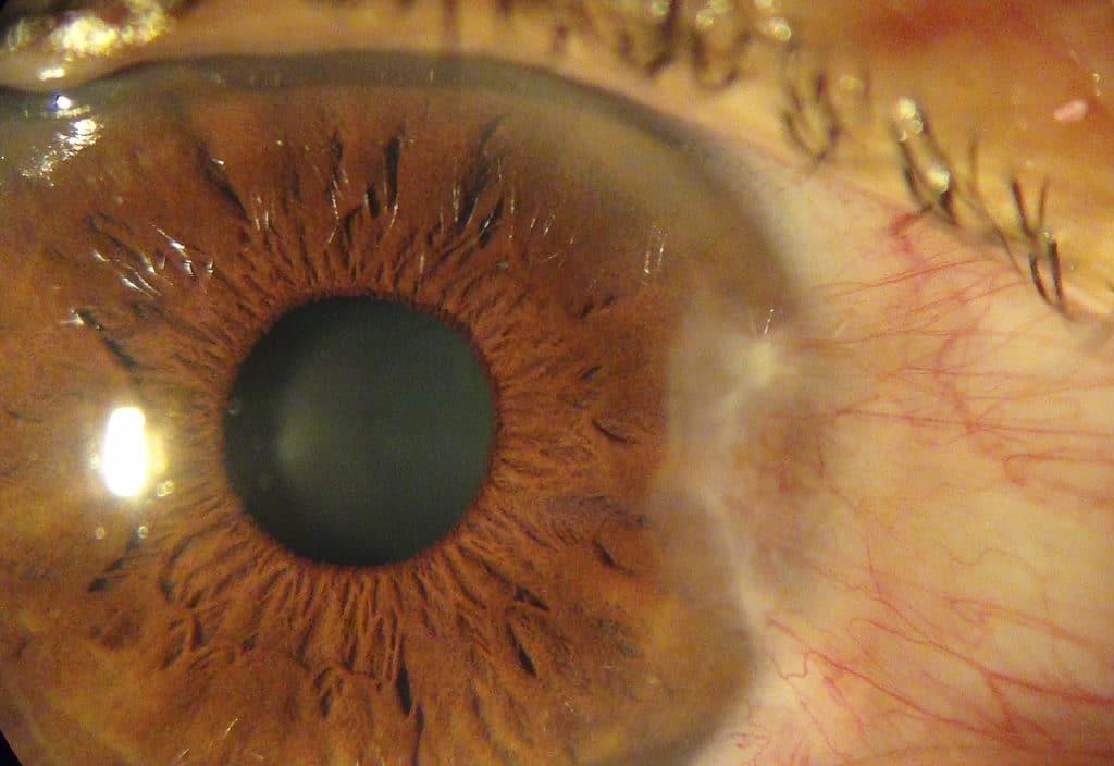 Enfermedades-oculares-o-de-los-ojos-10