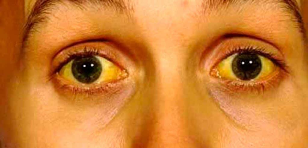 Enfermedades-oculares-o-de-los-ojos-11