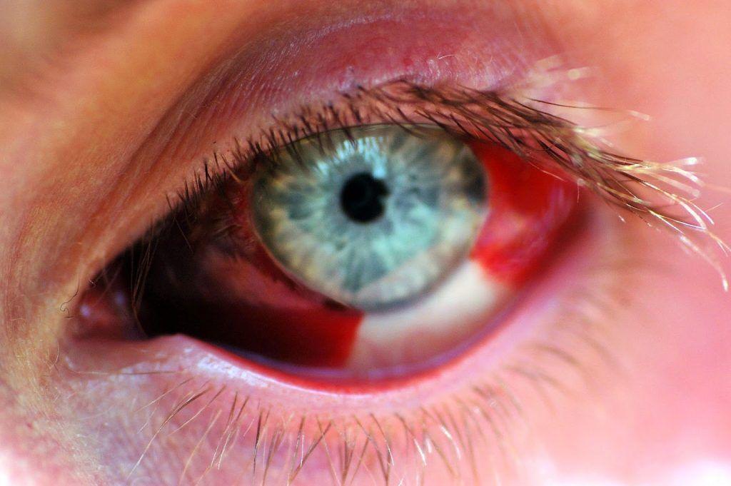 Enfermedades-oculares-o-de-los-ojos-6