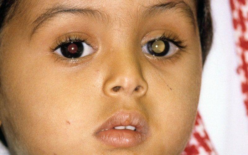Retinoblastoma-1