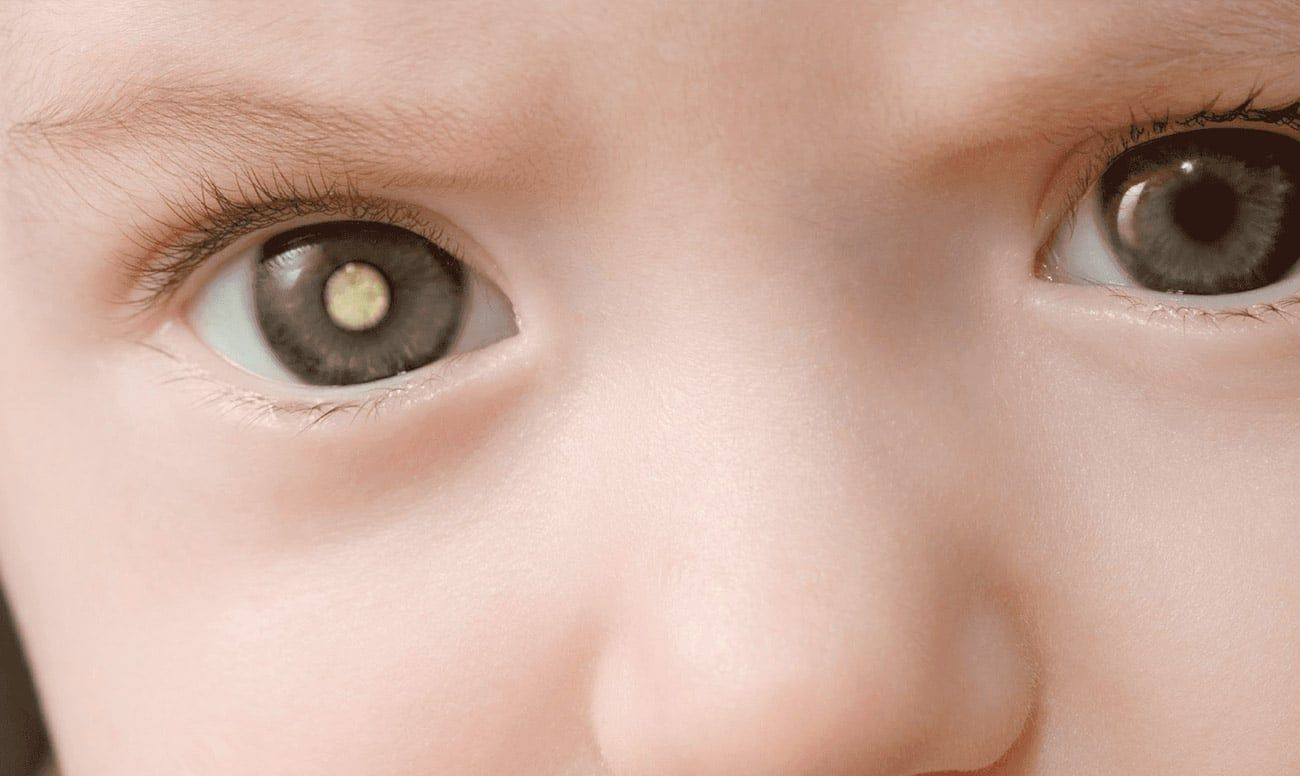 Retinoblastoma-3