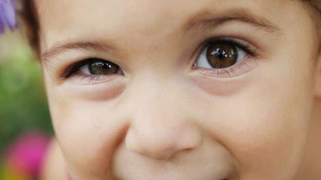 Ambliopía en niños el tratamiento es de tiempo prolongado