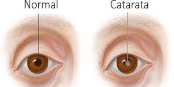 Causas de las cataratas en la vista