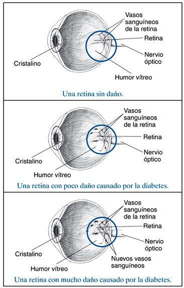ceguera nocturna 8