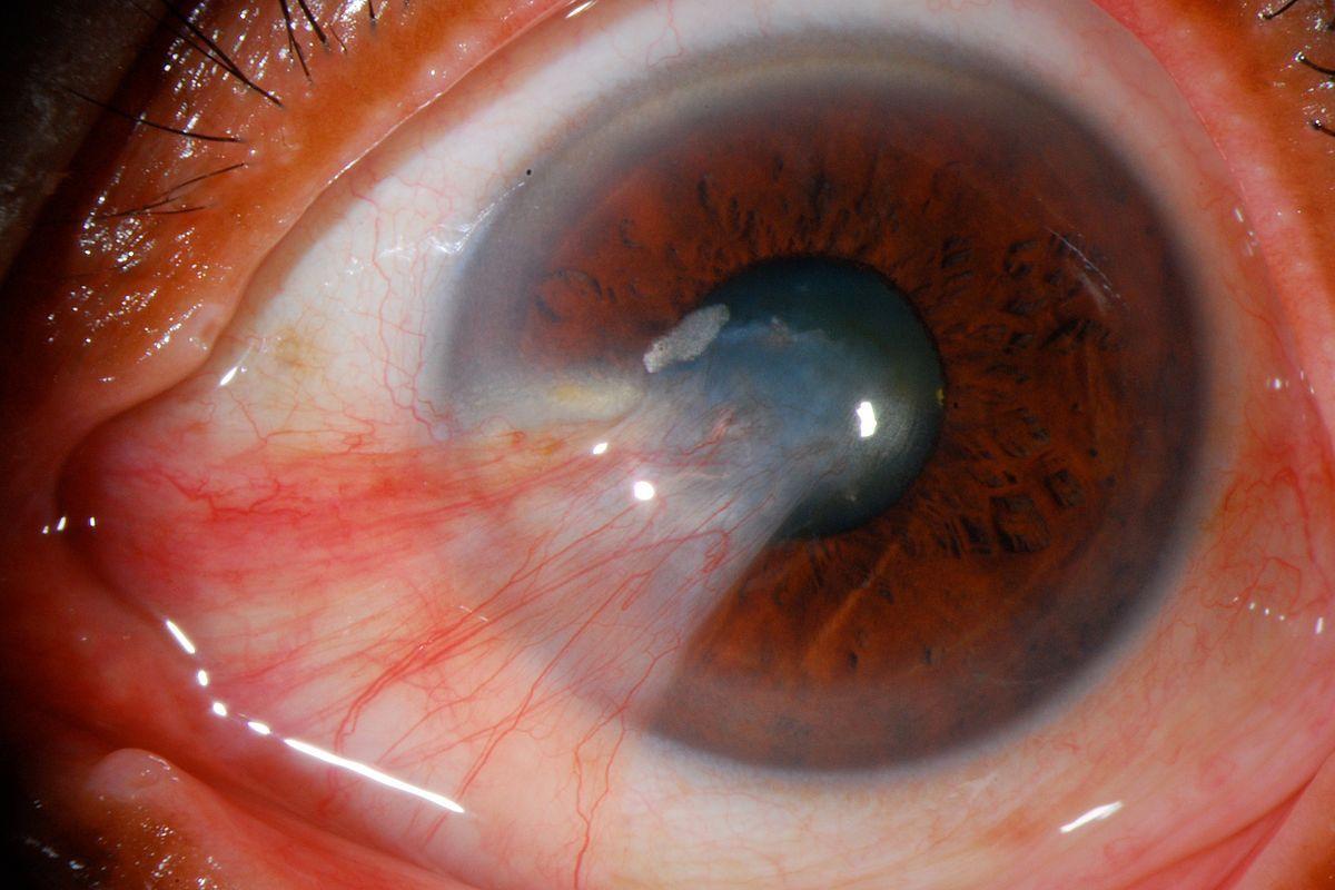 ceguera parcial 6