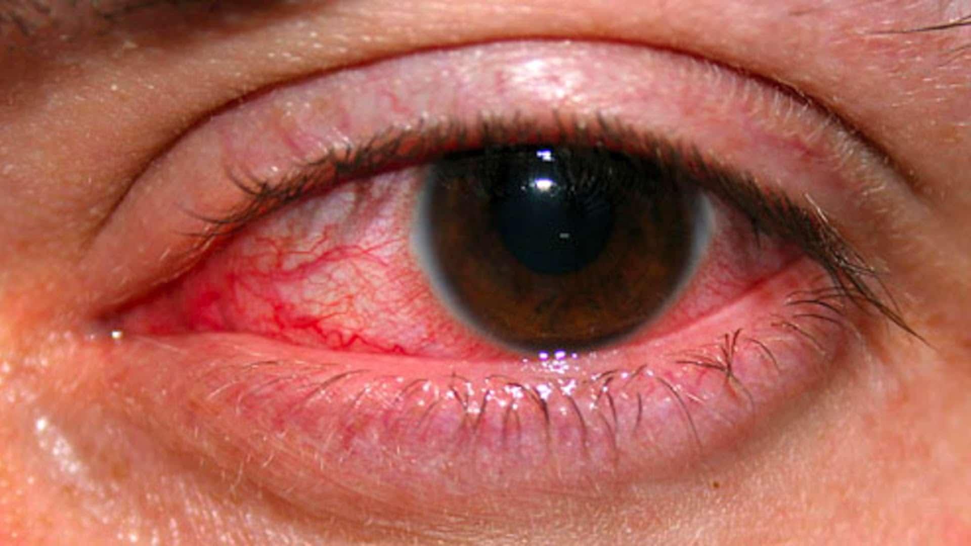 ceguera parcial 7