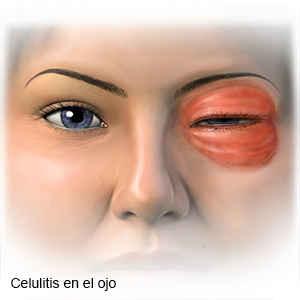 celulitis-orbitaria