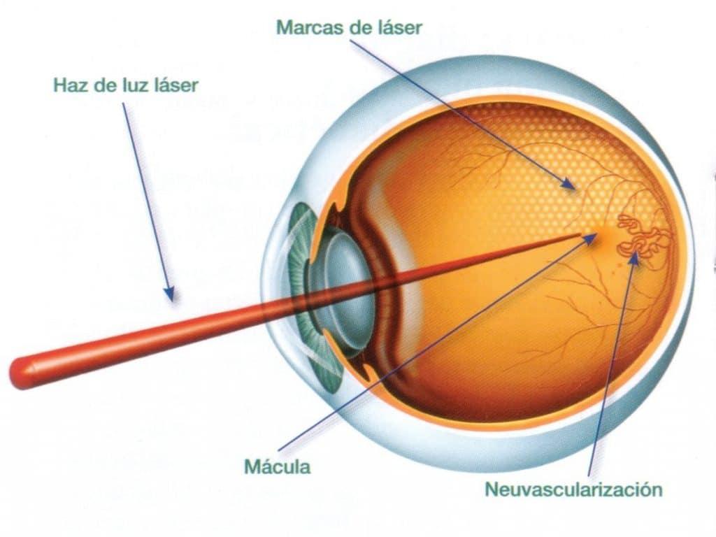 cirugía retinopatía diabética proliferativa