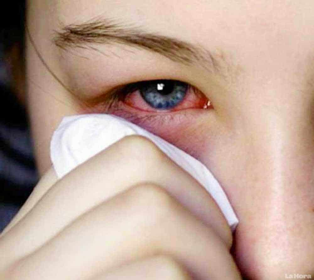 conjuntivitis viral 10