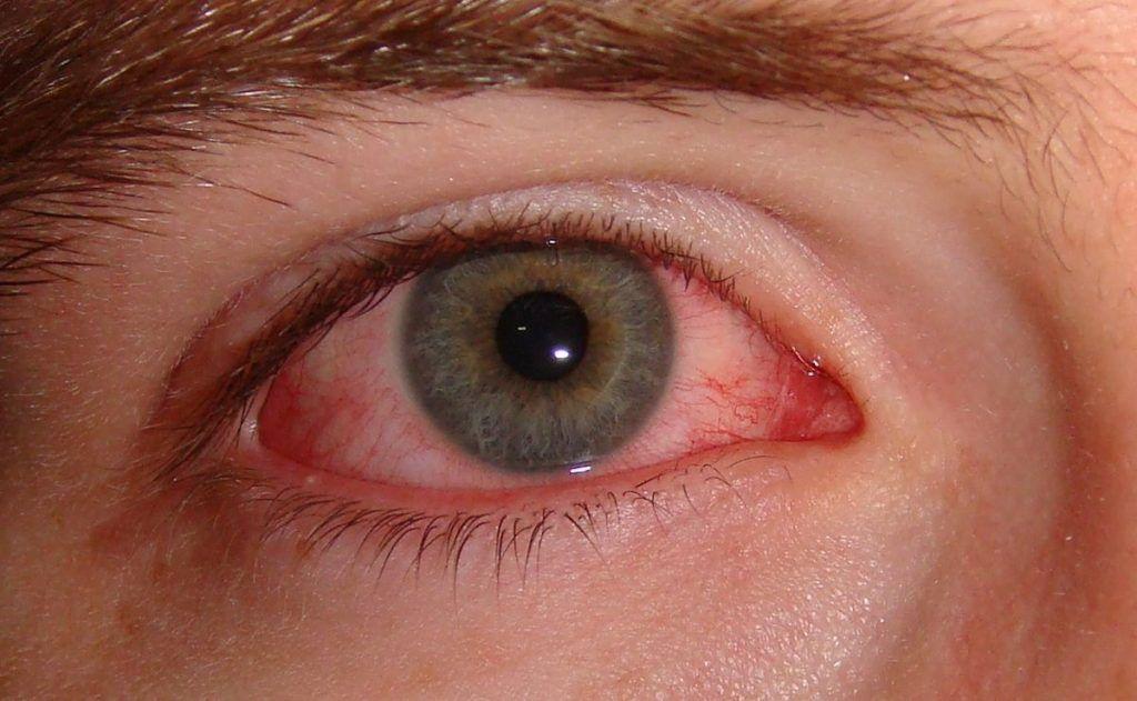 ojo con conjuntivitis