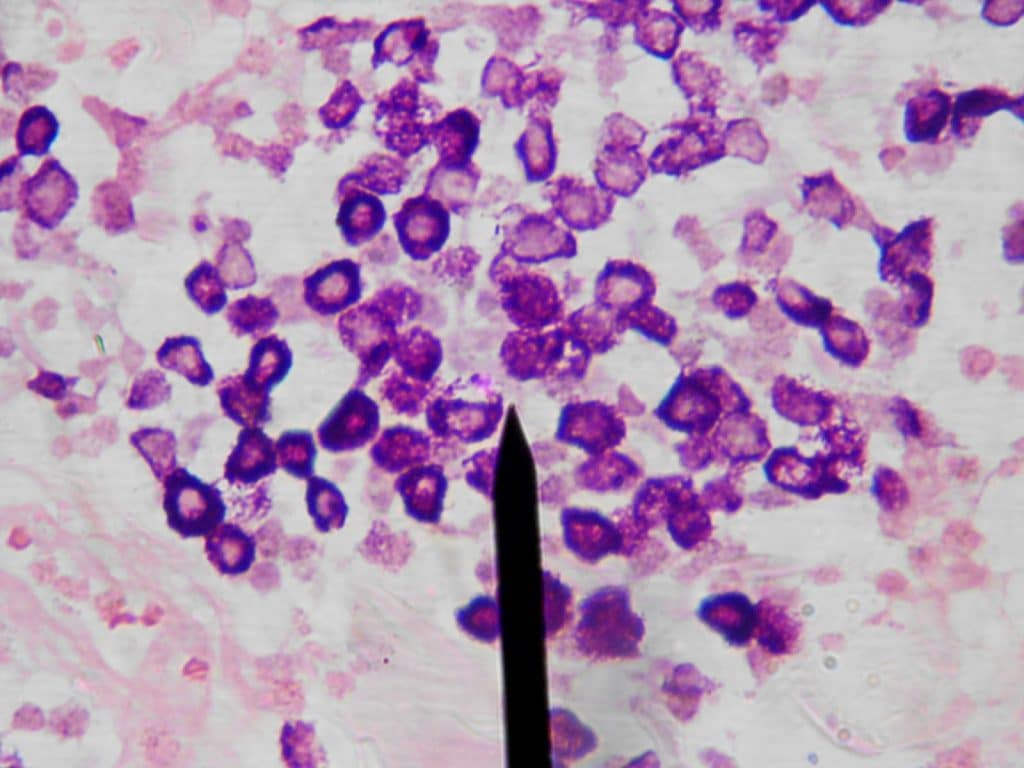 mastocitos en la conjuntivitis