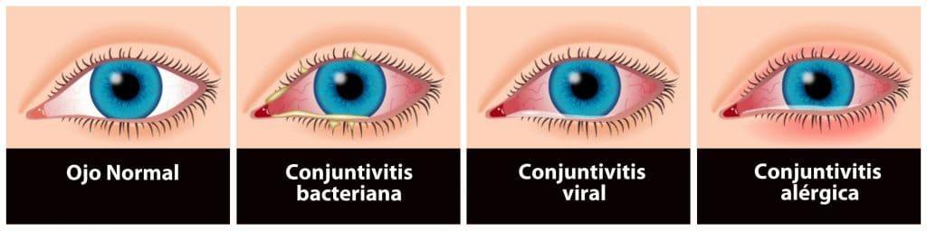 tipos de conjuntivitis