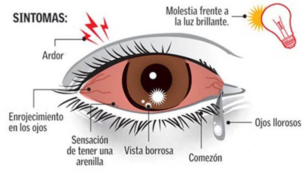 sintomas de la conjuntivitis